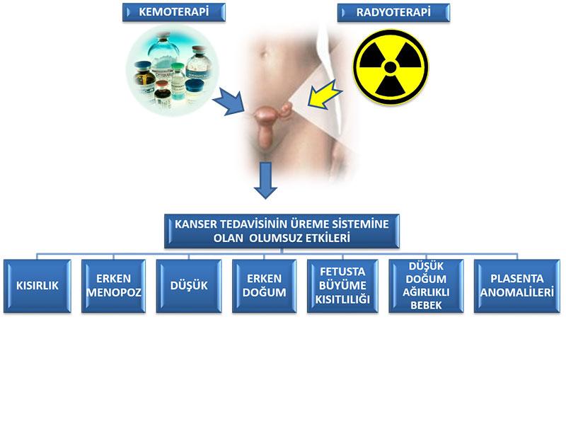 Kemoterapi ve radyoterapinin kadın üreme sistemine olan olumsuz etkileri